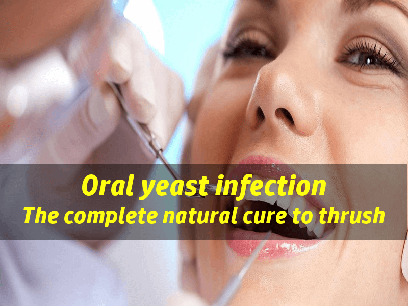 Yeast Infection In Mouth The Natural Treatment To Oral